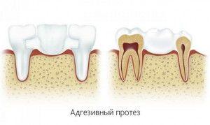Установка коронок на зубы