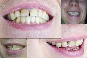 коронка на передний зуб