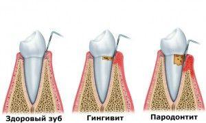 заболевание зубов