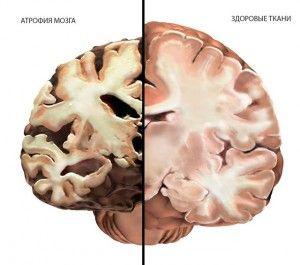 поражение ткани мозга