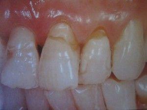 сколотые зубы