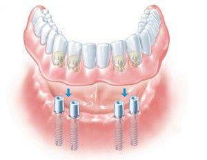 челюсть на имплантах
