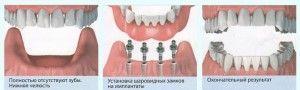 съемное протезирование на имплантах