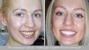 реставрация зубов при помощи виниров
