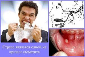 стоматит и стресс