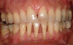 зубы с пародонтозом