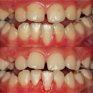 кровоточащие зубы