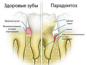 здоровые зубы и больные