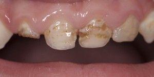 Razrushenie zubov u malyshej