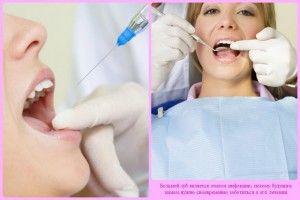 Можно ли во время беременности лечить зубы с анестезией?