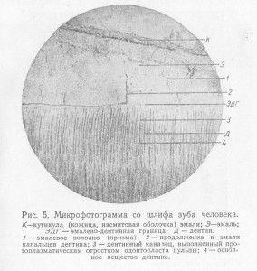 микрофотограмма со шлифа зуба человека
