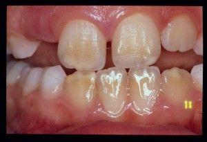 желтая эмаль зубов