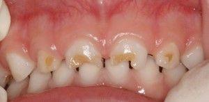 плохие молочные зубы