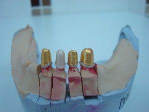 съемные протезы