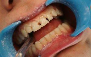 кариес передних зубов
