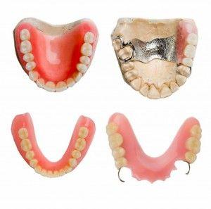 Ортодонтические конструкции и протезы