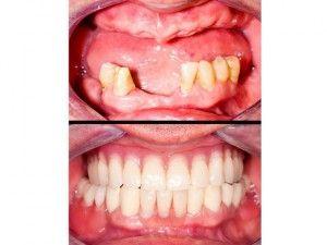протезирование челюсти