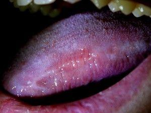 инфекция на языке
