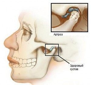 челюстной сустав и артроз