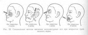 акупунктурное лечение неврита