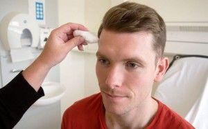 лечение воспаления лицевого нерва
