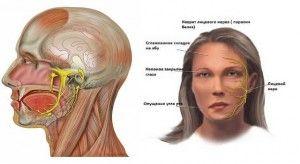 Воспаление лицевого нерва: лечение, симптоми, признаки
