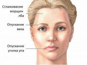признаки неврита
