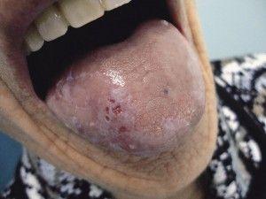 Лейкоплакия полости рта и языка: лечение в домашних условиях