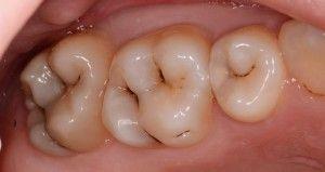 кариес в фиссурах зуба