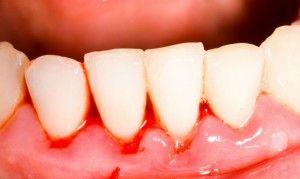 Болит десна между зубами: что делать?