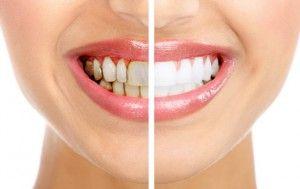 обработанные зубы