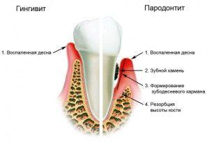 Воспаление десен при беременности - лечение гингивита