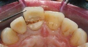 лопнувший зуб