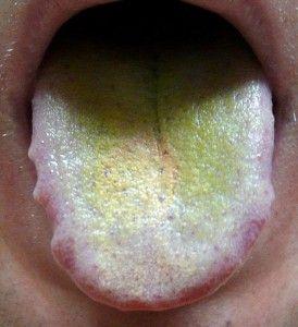 Зеленый налет на языке: причины