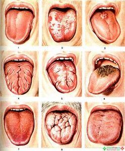 Воспаление сосочков на языке: симптомы болезней