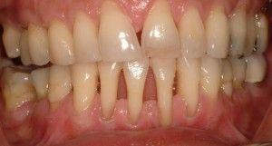 обнажение шейки зуба