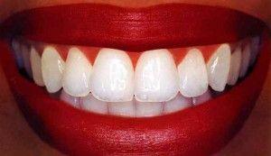 38 зуб це якийсь