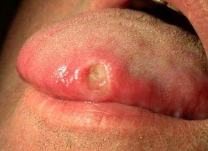 Язвы на языке: причины, как лечить эти болячки