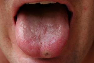 Сыпь на языке у взрослого и ребенка