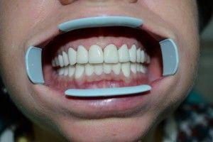 обеленные зубы