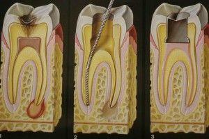 лечение зубных каналов зубов