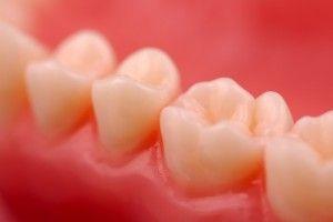 Оголение шейки зуба: причины и лечение