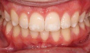 Вольные зубы