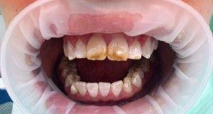 Эндемический флюороз зубов