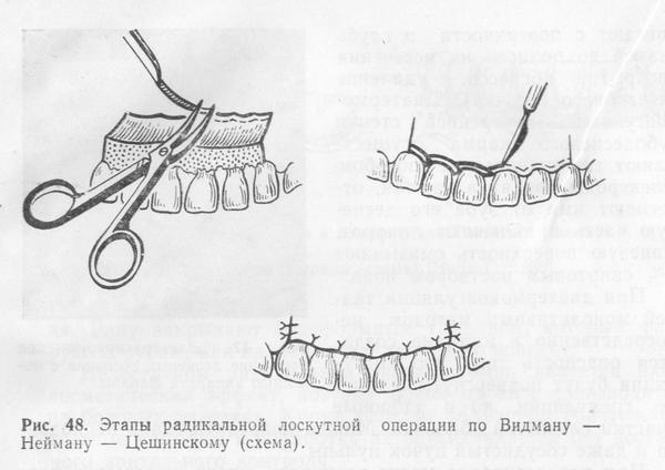 Методика Видмана-Неймана