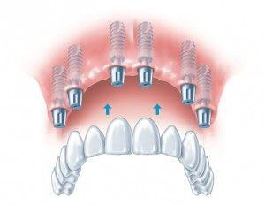 Мостовидный зубной протез на имплантах