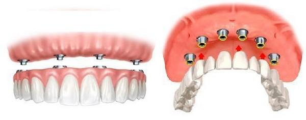 несъемный зубные протезы