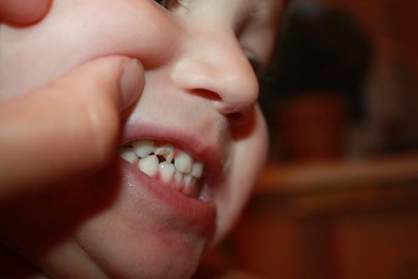 Раскрошившийся зуб без крови
