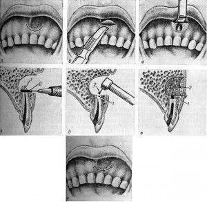 Схема резекции верхушки корня зуба
