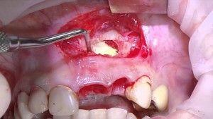 Удаление радикулярной кисты верхней челюсти